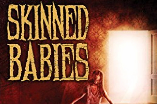 """Skinned Babies"" from Mason Burgess"